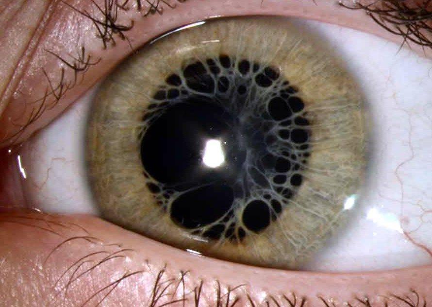 Поликория глаза: что это, причины и лечение двойного зрачка