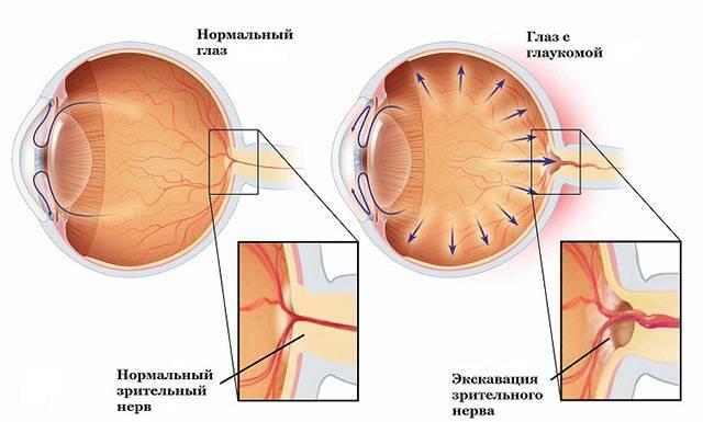 Глазное давление: симптомы и лечение в домашних условиях