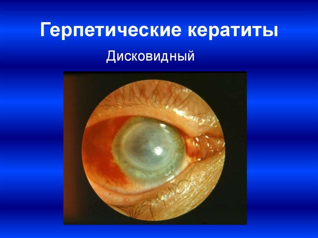 Герпетический кератит - методы диагностики и лечения