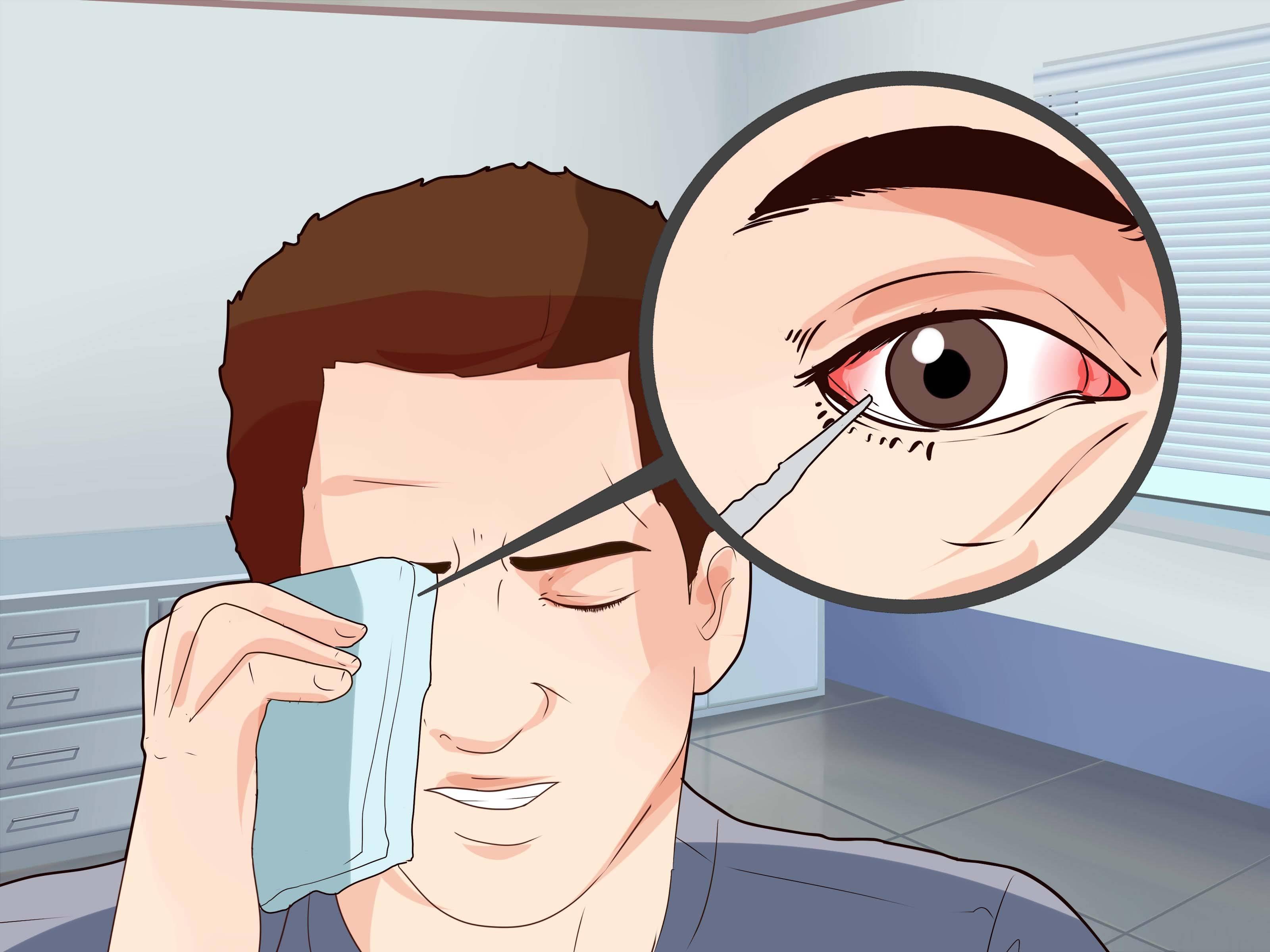 Травма глаза - первая помощь, последствия, лечение в домашних условиях