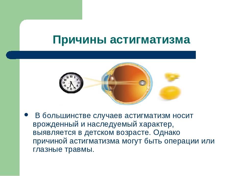 У ребенка астигматизм глаз: что это такое, лечится или нет, виды заболевания и причины его проявления, сопутствующие симптомы