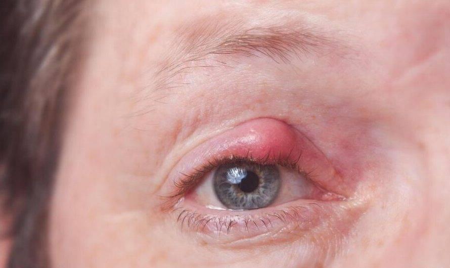 Абсцесс на лице: симптомы и лечение