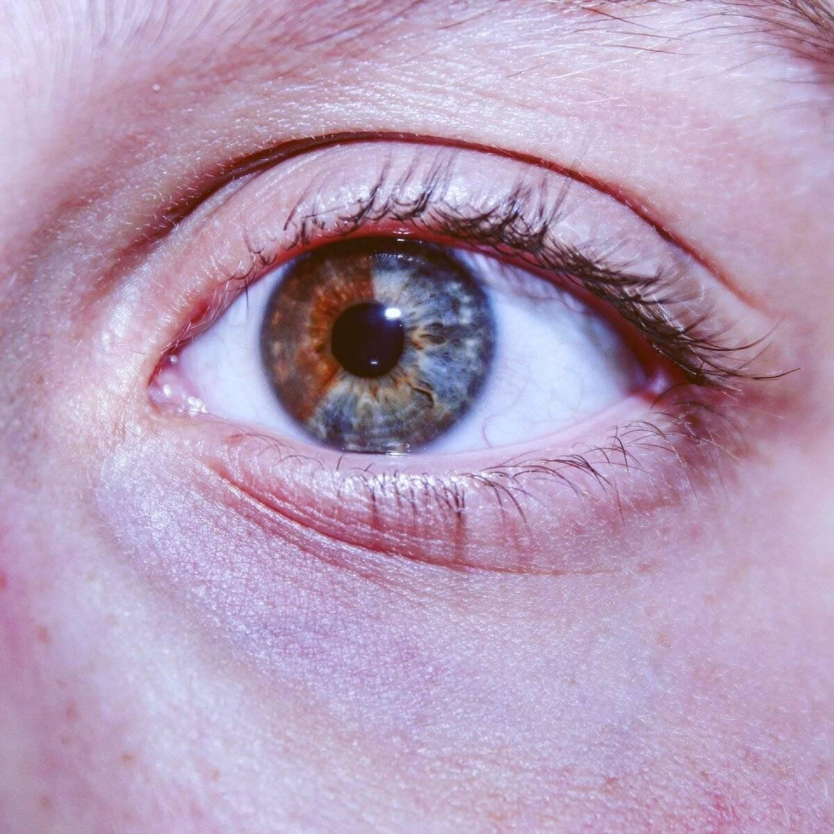 Гетерохромия - виды, симптомы, осложнения, диагностика, лечение