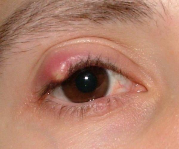 Холодный ячмень: обследование, первые признаки заболевания