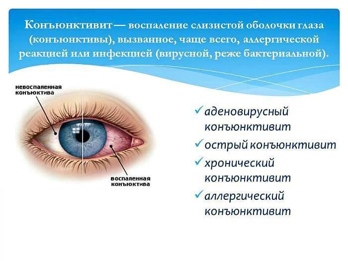 Если гноятся глаза у взрослого при простуде как лечить