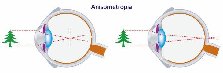 Анизометропия                (анизейкония)