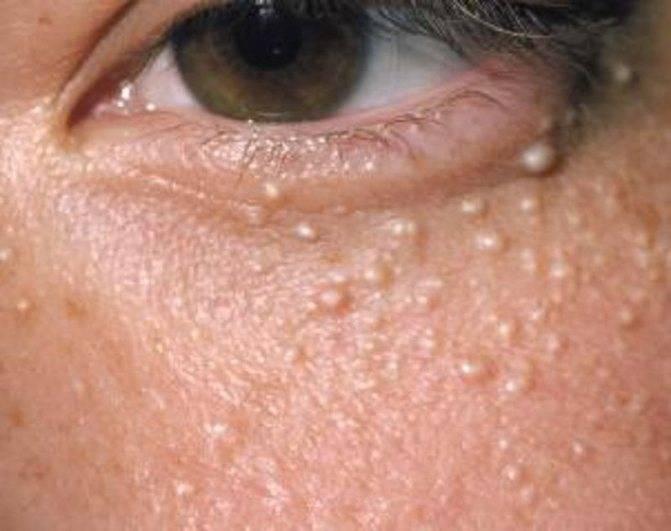 Что делать, если на коже вокруг глаз возникают белые прыщики?