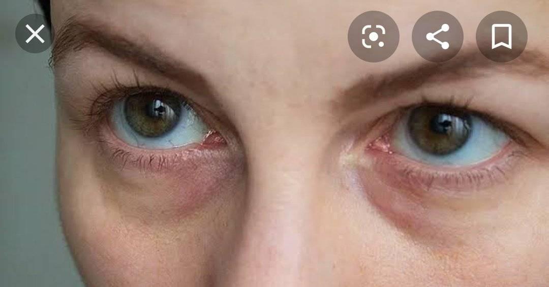 Синяки под глазами у женщин и детей: причины и их устранение