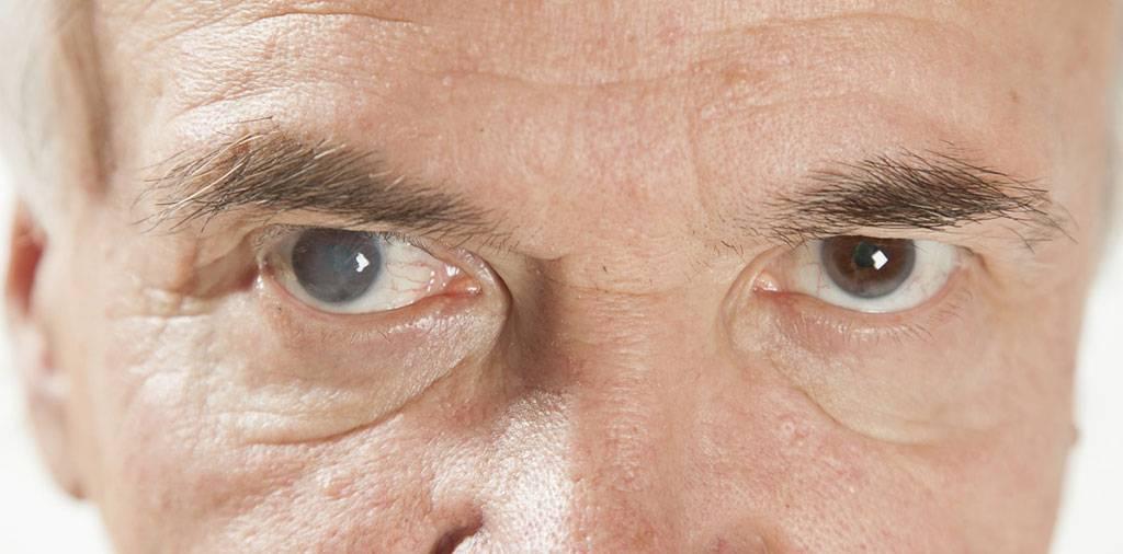 Как убрать бельмо с глаза у человека?