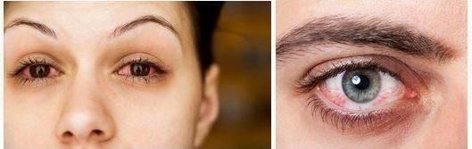 Что опаснее: ношение контактных линз или лазерная коррекция? / блог компании клиника офтальмологии доктора шиловой / хабр