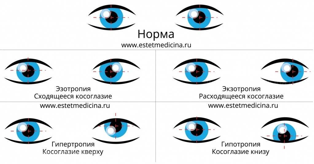 """Скрытое косоглазие у детей и взрослых - причины, диагностика, лечение - moscoweyes.ru - сайт офтальмологического центра """"мгк-диагностик"""""""