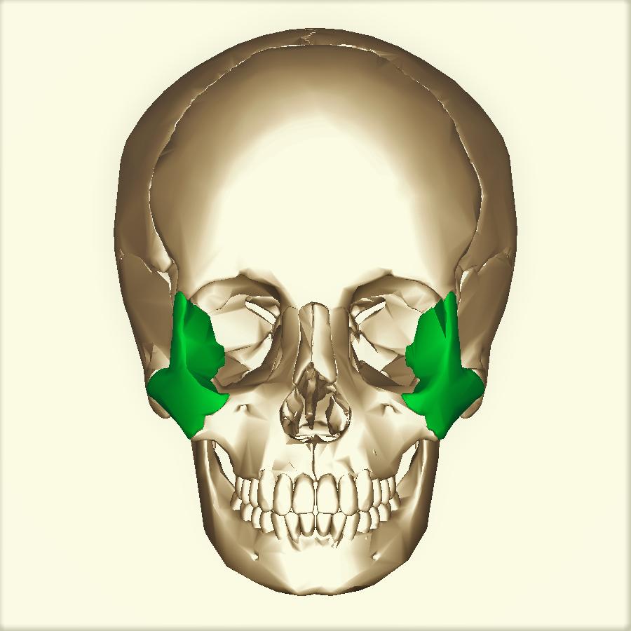 Переломы скуловой кости - симптомы и лечение