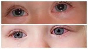 Стоит бить тревогу или ждать, пока пройдет само: что делать, если у новорожденного красные глаза?