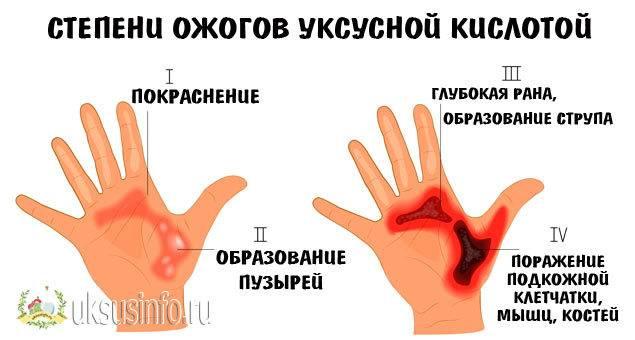 Что делать если духи попали в глаза или ими брызнул ребенок: первая помощь, лечение и последствия дезодоранта