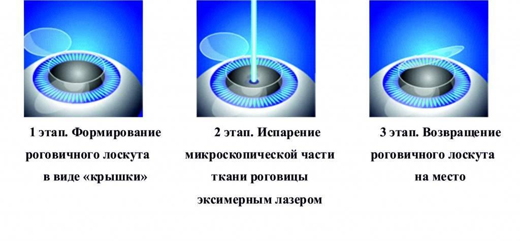 Чем отличаются ласик и фемто ласик