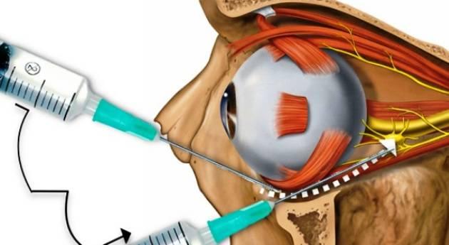 Инъекции в глазное яблоко. способы укалывания, используемые препараты