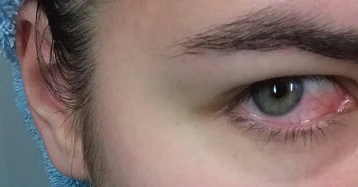 Болит глаз от мыла