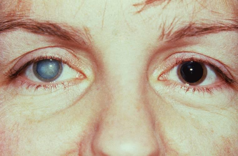 Синдром фукса (дистрофия фукса): симптомы, последствия и лечение