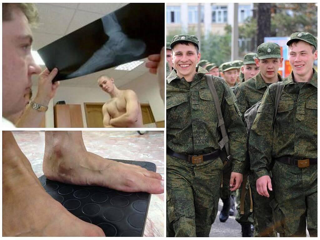 Берут ли с косоглазием в армию – пригодность призывника