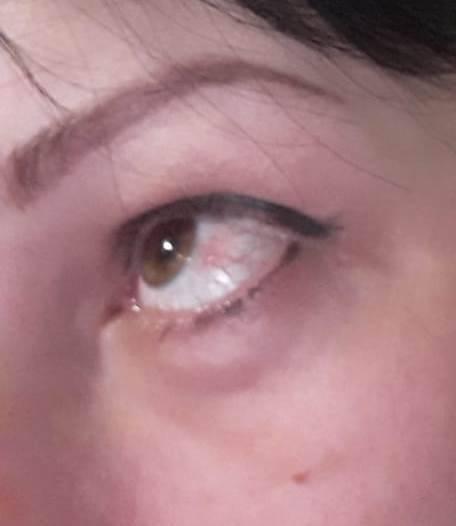 Причины появления и последствия красного пятна на глазном яблоке