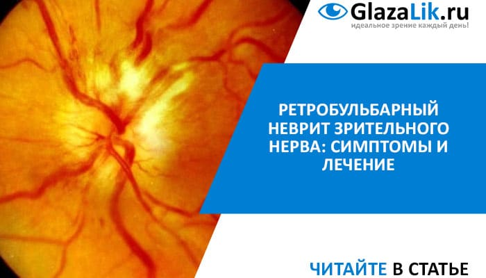 Опасность для зрения: ретробульбарный неврит и воспаление зрительного нерва