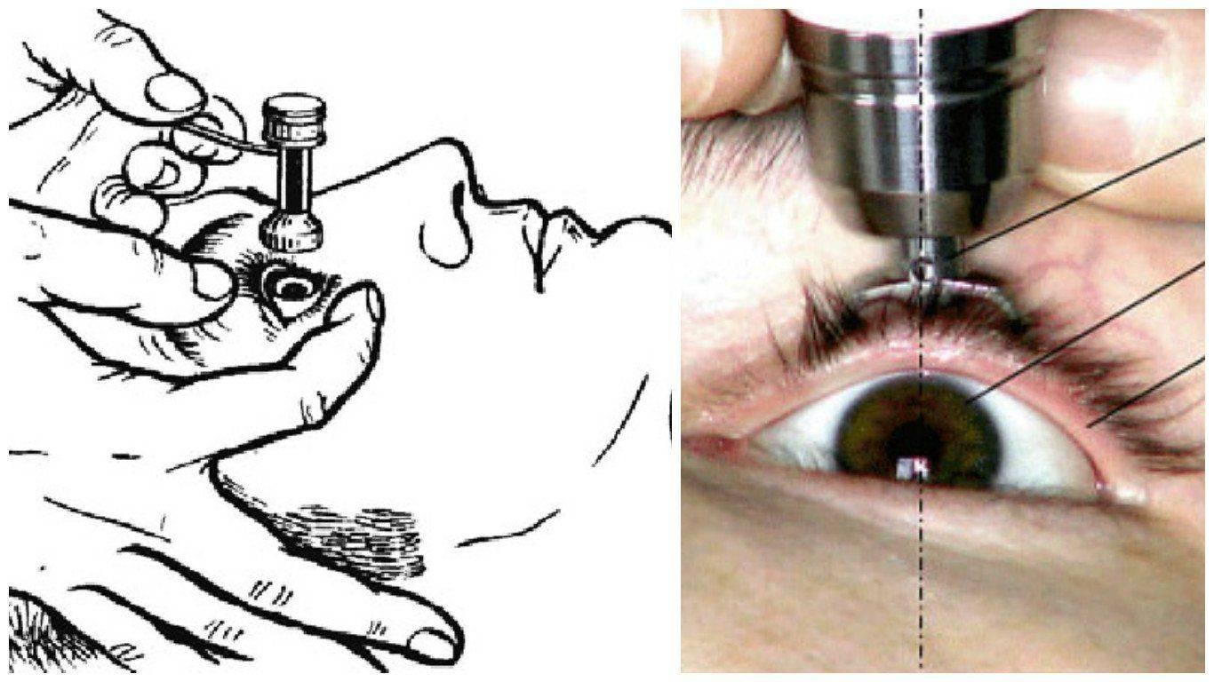Офтальмометрия: описание метода, расшифровка результатов