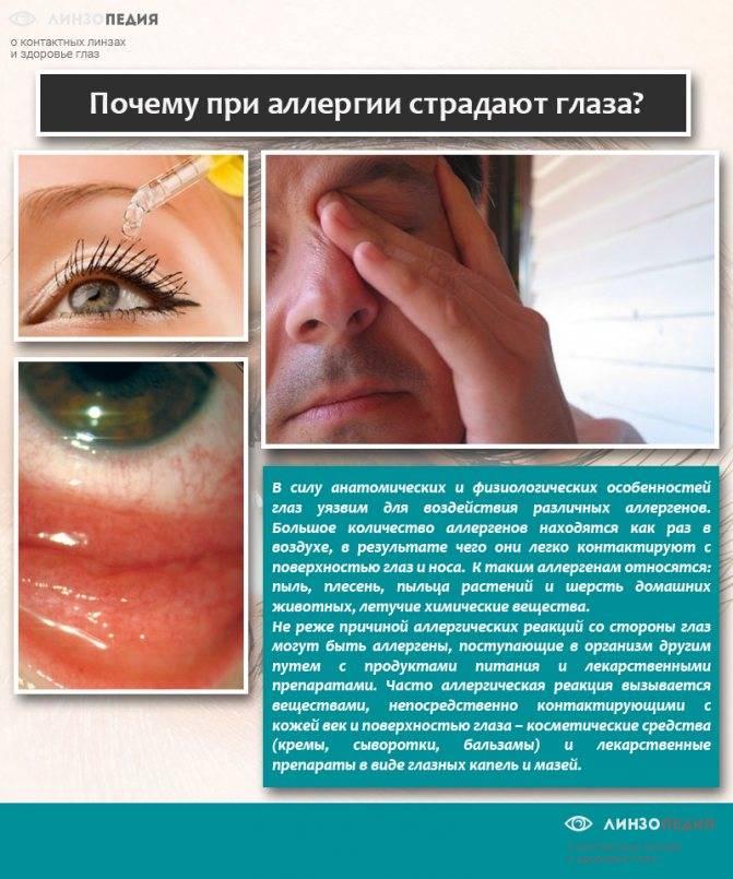 Аллергия на глазах: эффективные способы лечения и профилактики заболевания