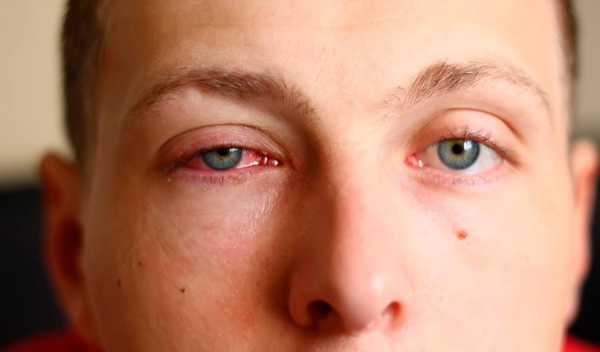 Продуло глаз - симптомы, лечение