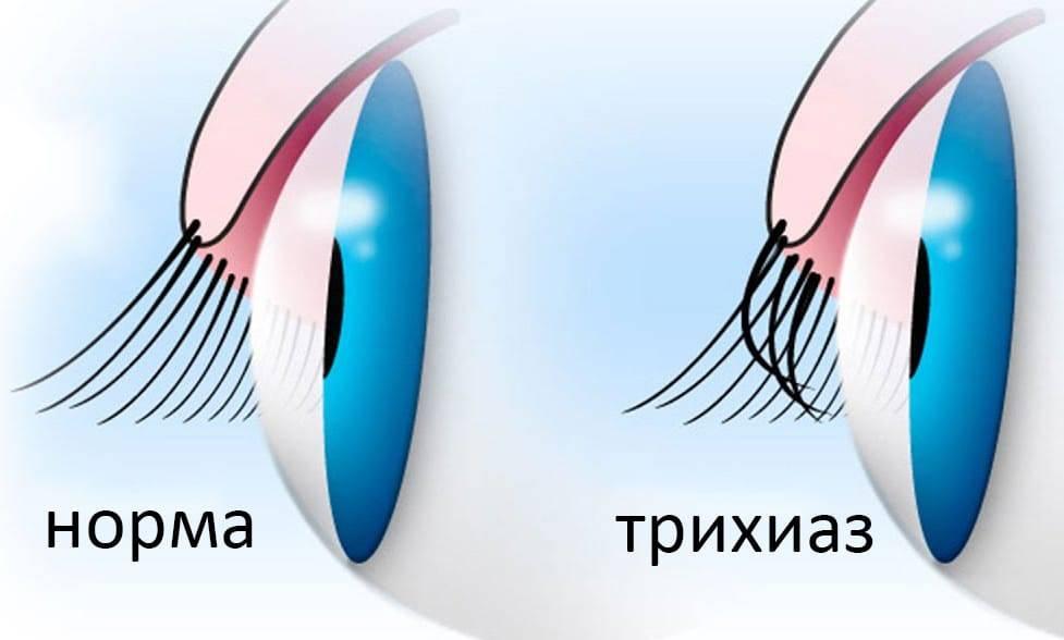 Трихиаз. диагностика и лечение