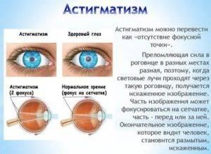 В глазу темное пятно, когда смотришь: причины, диагностика и лечение - sammedic.ru