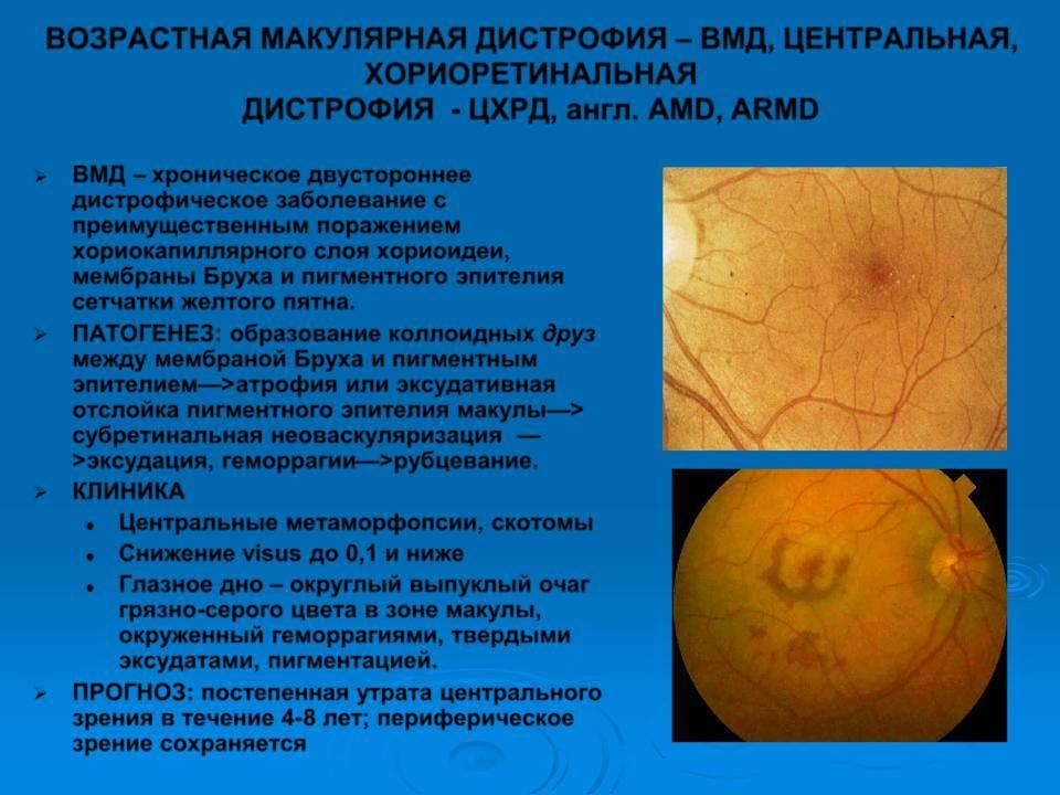 Макулярная дистрофия сетчатки глаза: лечение и диагностика — глаза эксперт