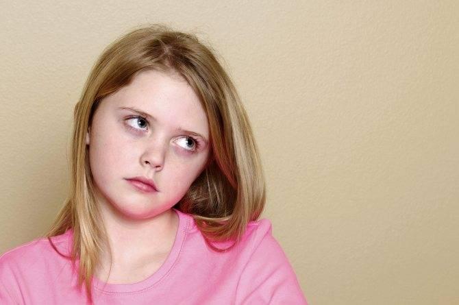 Закатывание глаз: возможные причины и лечение oculistic.ru закатывание глаз: возможные причины и лечение