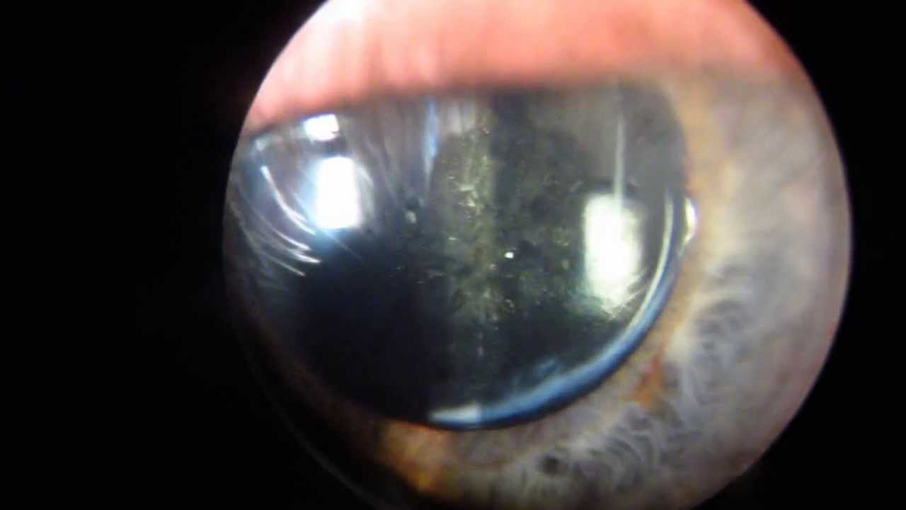 Кому проводится лазерная дисцизия вторичной катаракты?