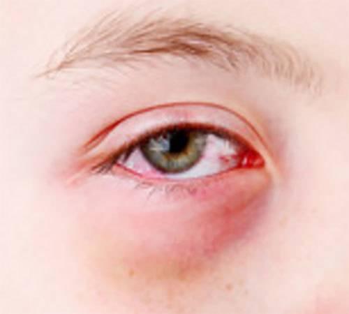 Аллергический конъюнктивит у детей: симптомы и методы лечения заболевания глаз у ребенка, фото