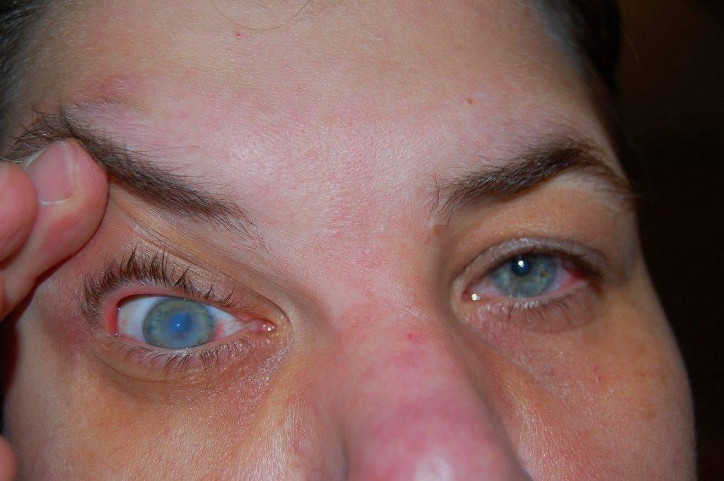 Уколы в глаза при дистрофии сетчатки - какие препараты используют для лечения и инструкция как оформить инъекции по квоте вмд