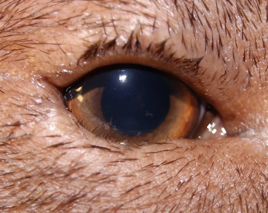 Заворот века (энтропион) у кошек - симптомы, лечение, препараты, причины появления | наши лучшие друзья