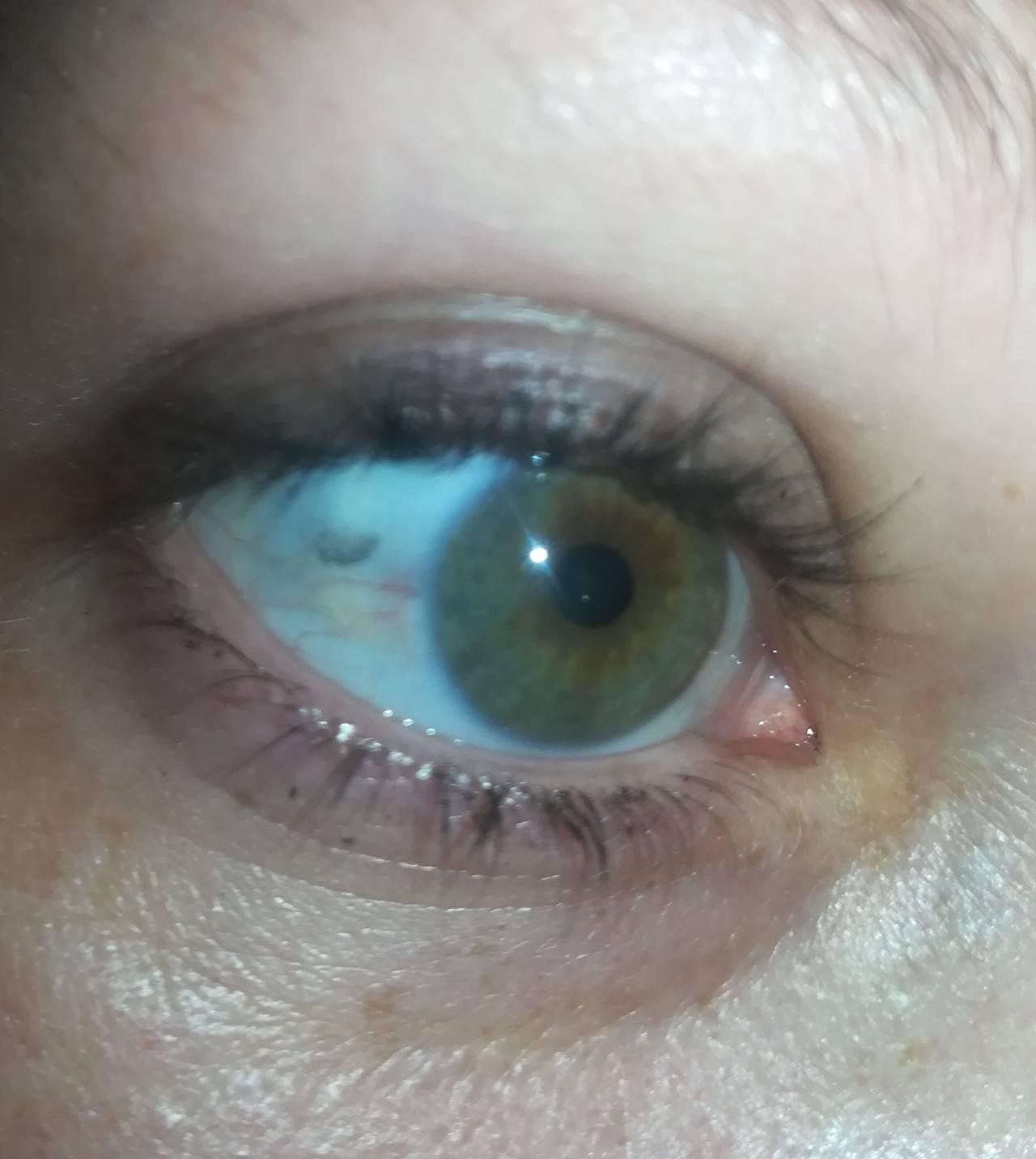 Белки глаз красные: причины, лечение у взрослых и детей, сопутствующие симптомы (красные прожилки, боль), последствия