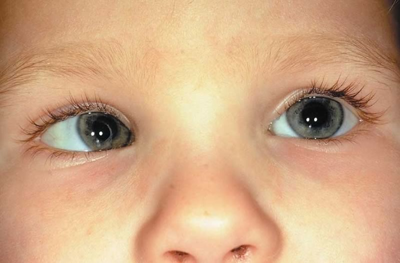Упражнения для глаз при косоглазии