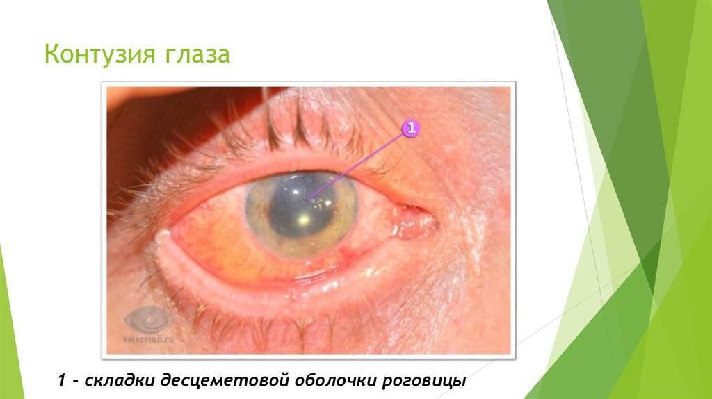 """Контузия глаза: симптомы и лечение - """"здоровое око"""""""