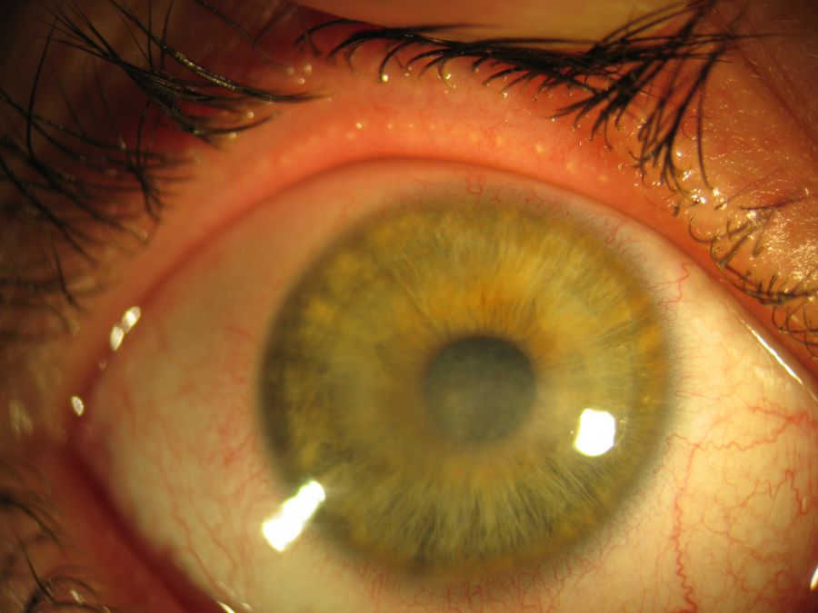 Помутнение роговицы глаза (лейкома, бельмо): разбираемя в причинах и методах терапии