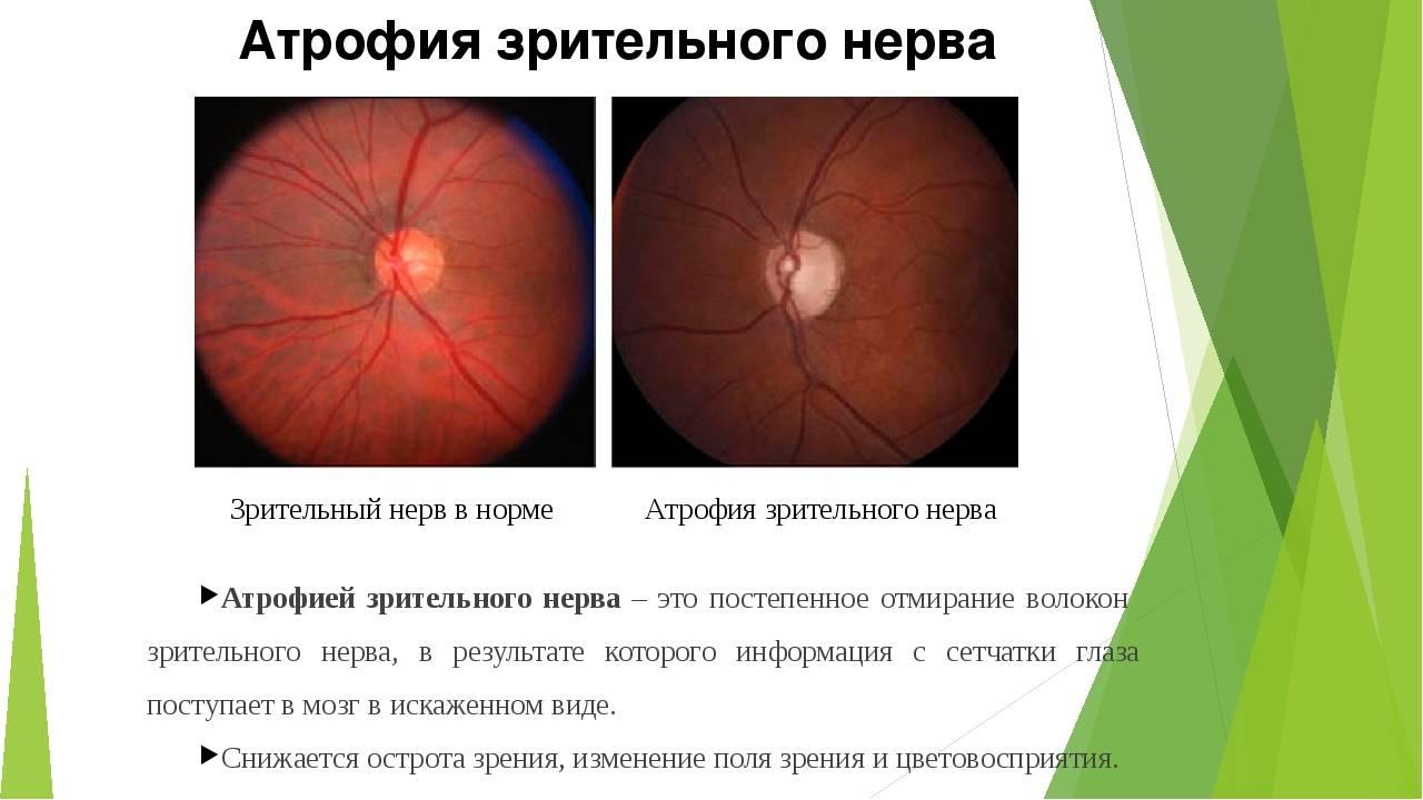 Причины и лечение атрофии зрительного нерва различной степени тяжести, симптомы и прогноз для пациента