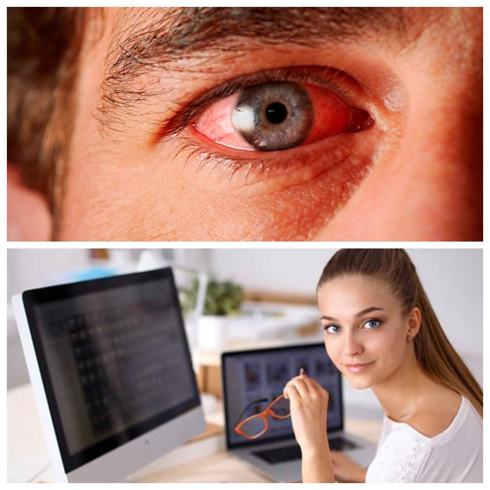 Как избавиться от покраснения глаз в домашних условиях