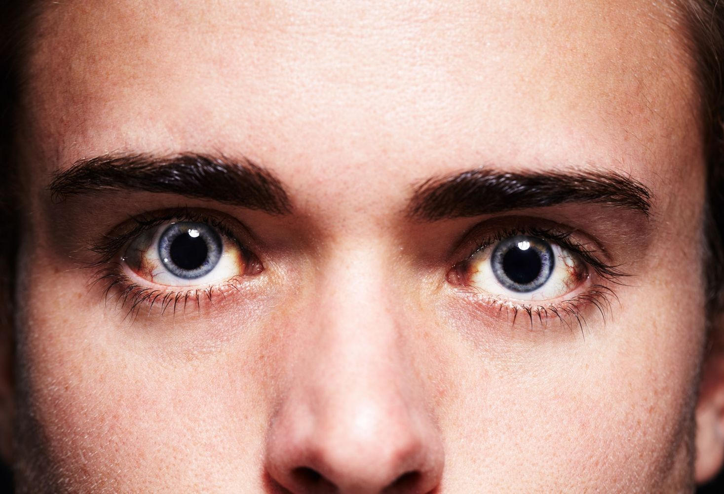 Стеклянные глаза: что значит симптом и как с ним бороться