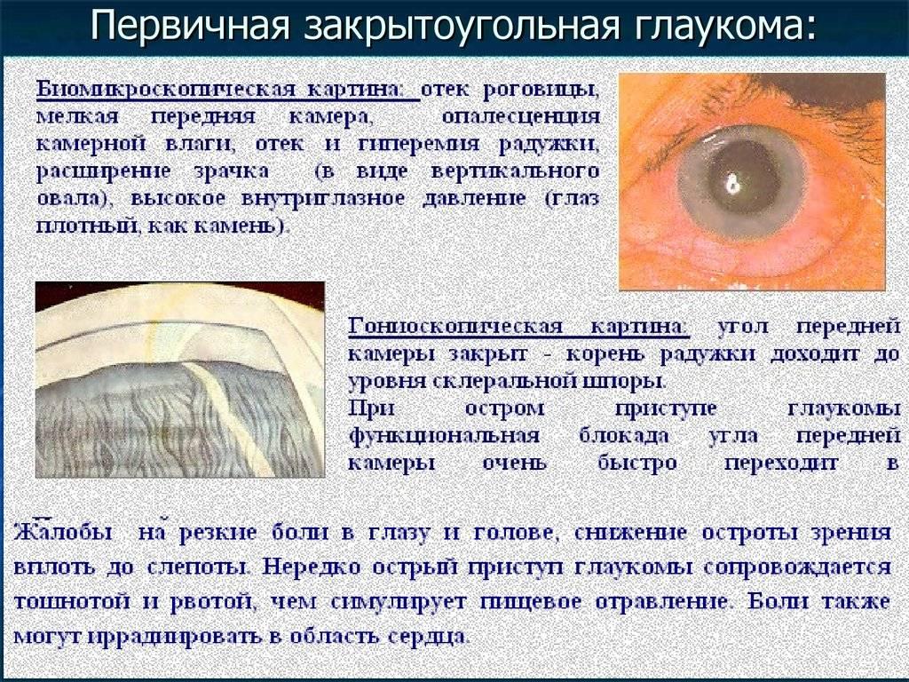 Отличия открытоугольной и закрытоугольной глаукомы - вылечимглаукому