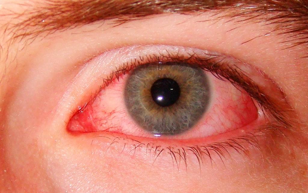 Как вылечить красные сосуды в глазах