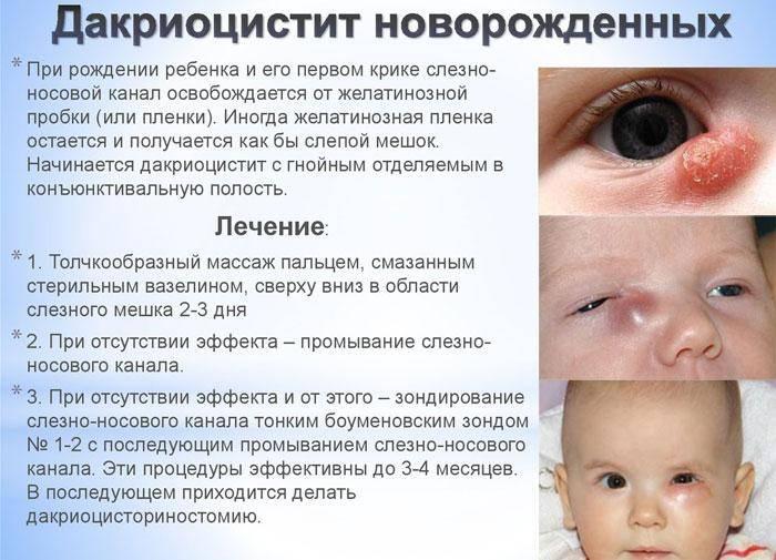 Дакриоцистит - причины, симптомы, лечение