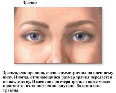 Диагноз разный размер зрачков. анизокория: почему у младенцев бывают разные зрачки