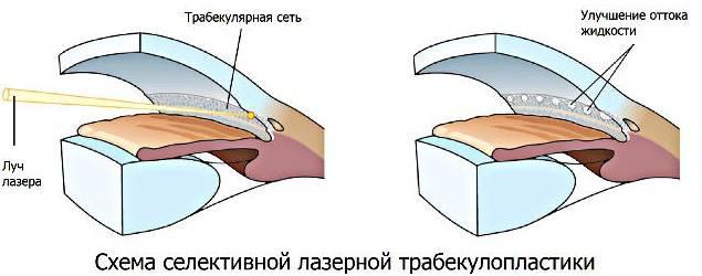 Как проводится лазерная трабекулопластика при глаукоме? — глаза эксперт