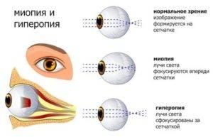 Зрение – как никогда лучше! самые эффективные методы для лечения близорукости