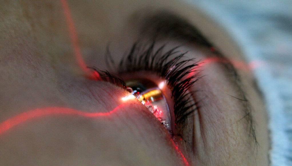 Может ли ухудшиться зрение после лазерной коррекции: почему, что делать в такой ситации
